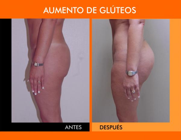 AUMENTO DE GLUTEOS-REVISADO