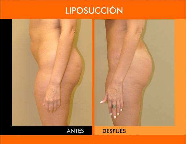 LIPOSUCCION-REVISADA