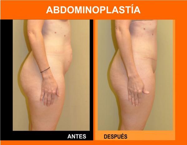 abdominoplastia_final